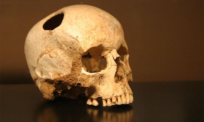 trepanation-prehistorique-wkpd-688po