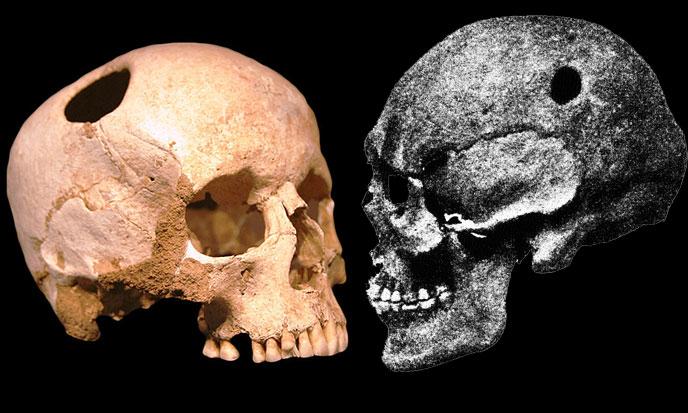 trepanations-neolithiques-688po